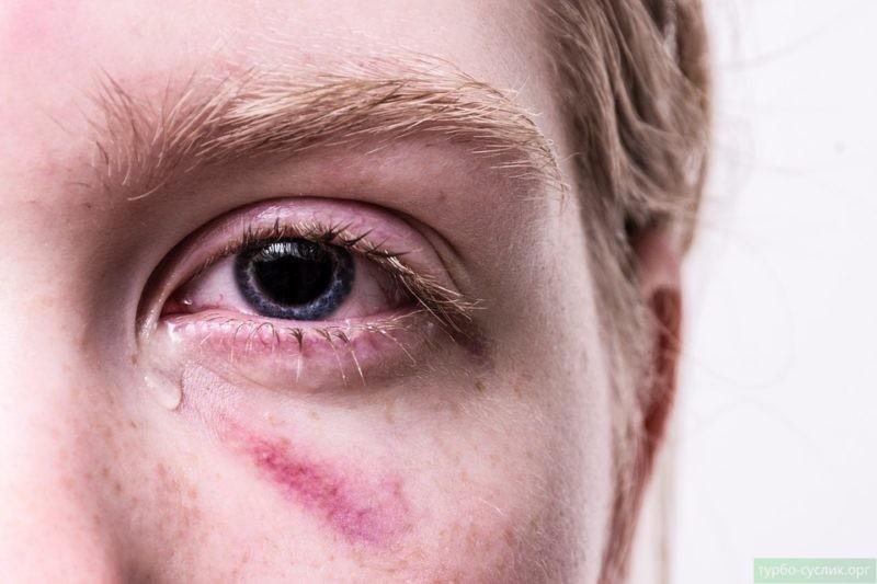 Домашнее насилие - причина душевной боли